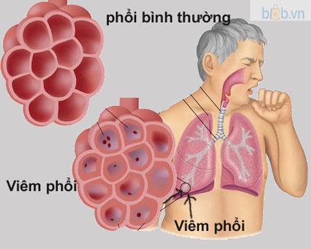 Phong ngua cac benh ve duong ho hap - Phòng ngừa các bệnh về đường hô hấp ở người cao tuổi