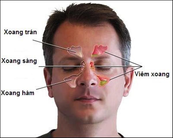 cac benh di ung va cach dieu tri viem mui di ung - Các bệnh dị ứng và cách điều trị viêm mũi dị ứng